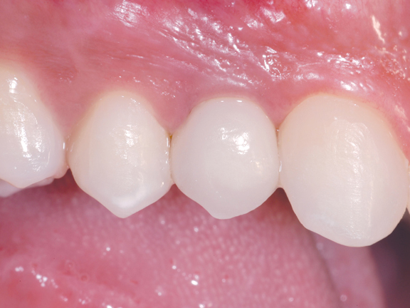 implant2_after